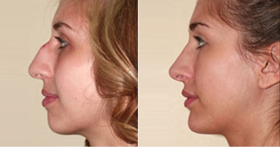 cos1-rhinoplasty-chin