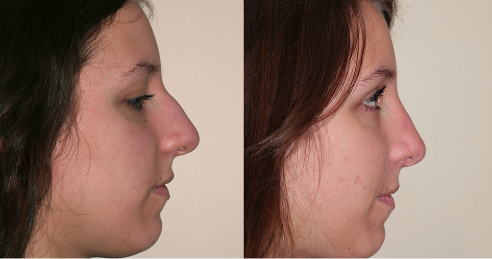 frenette-k2-rhinoplasty