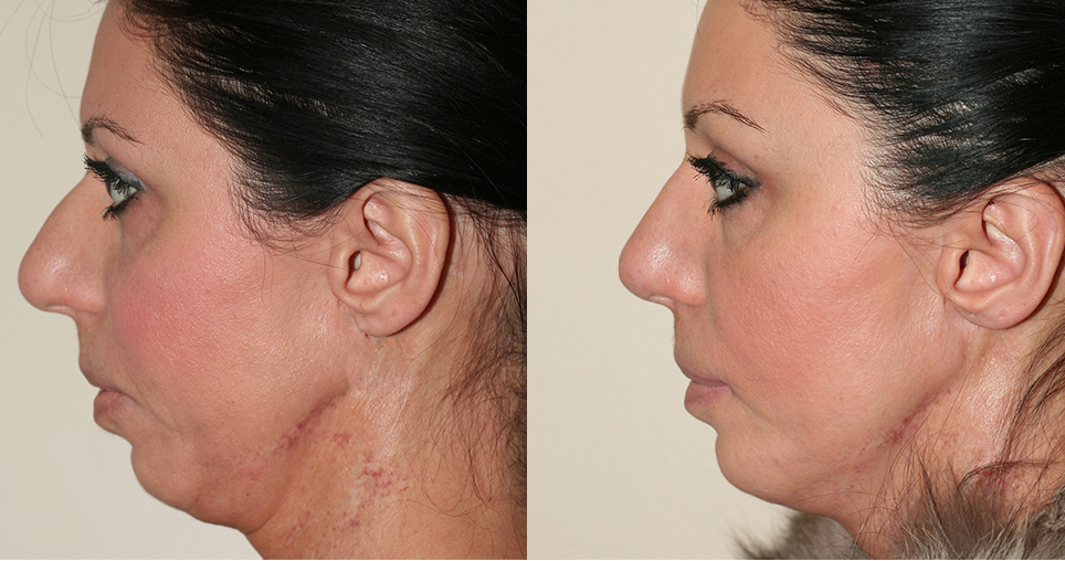 kosnakian-rhinoplasty-fronto-lifting