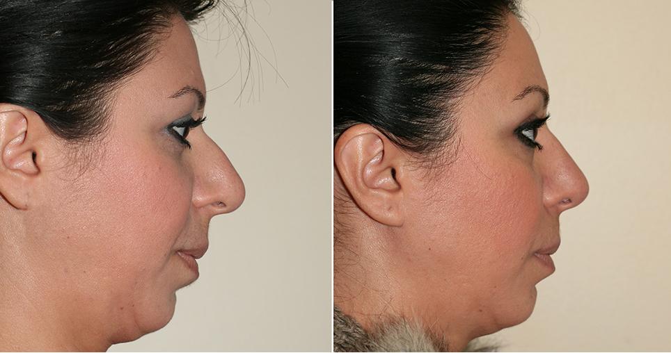 kosnakian-k2-rhinoplasty-fronto-lifting