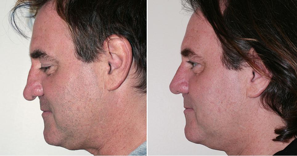 monette-a1-rhinoplasty-premaxillary