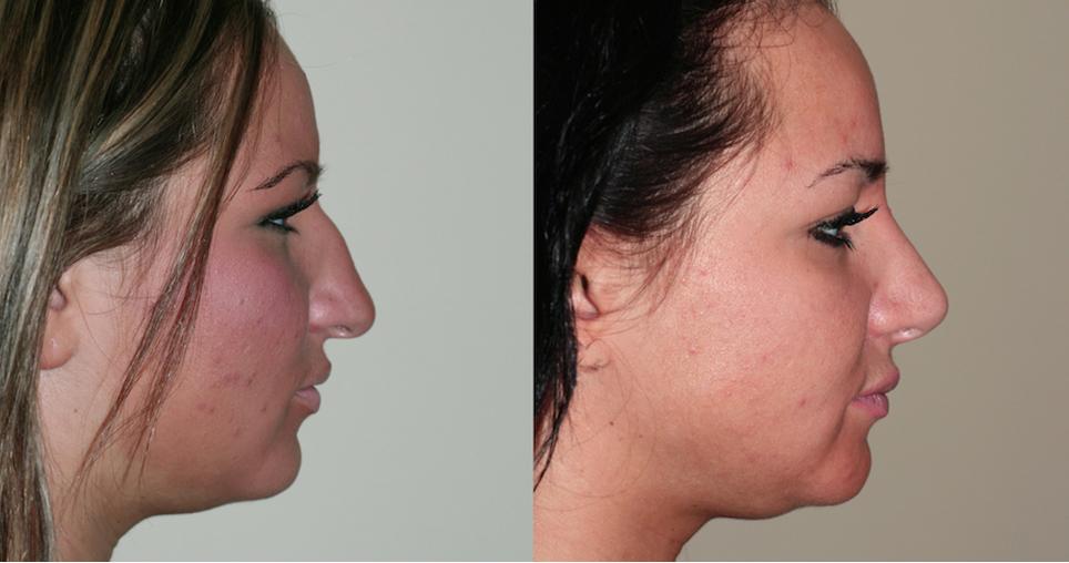 yacef-m2-rhinoplasty