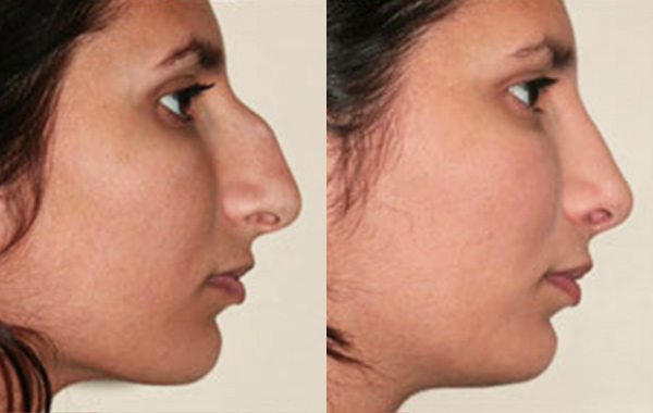 nose-05-a