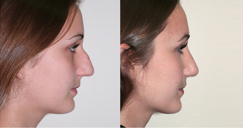 patient-5-st-louis-c1-rhinoplasty
