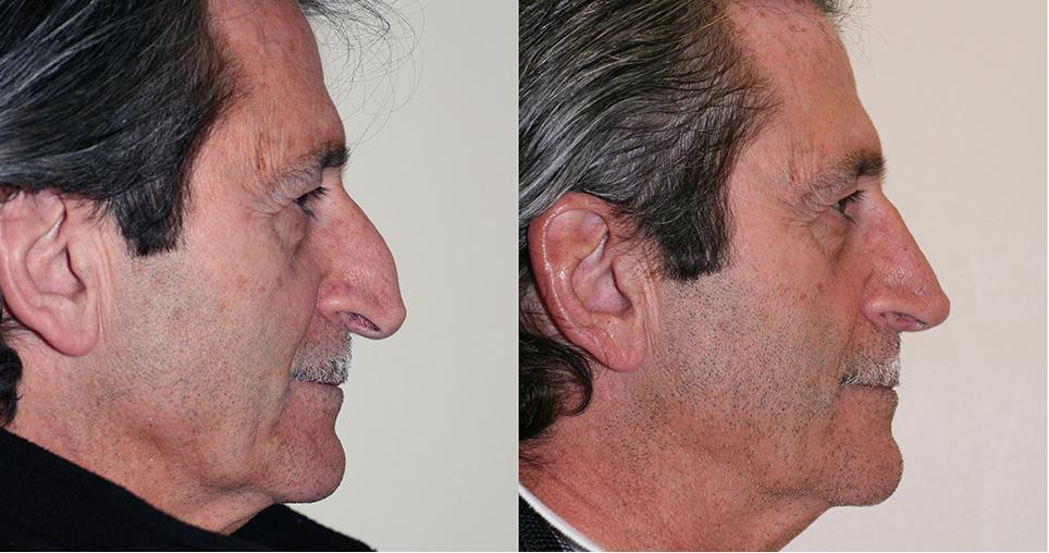 patient-7-sayegh-i1-rhinoplasty
